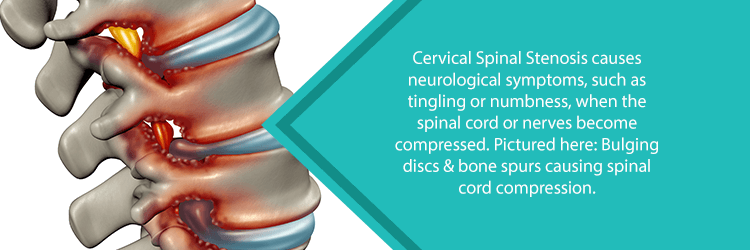 image of cervical spinal stenosis and spinal cord compression from bone spurs